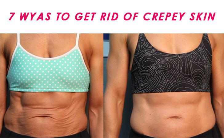 Get Rid of Crepey Skin