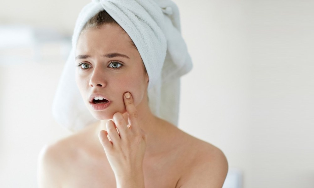 How to prevent acne and pimples naturally