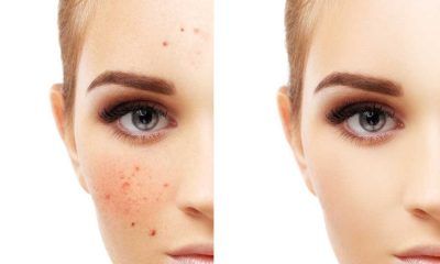 Acne Free 10 Best Acne Free Products 2021: Acne Control Products that WORK