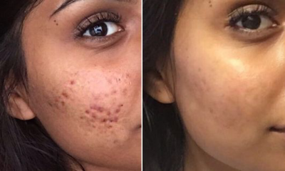 image 51 How to Get Rid of Your Cystic Acne Permanently
