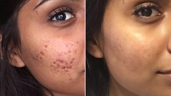 How To Get Rid Of Your Cystic Acne Permanently Her Style