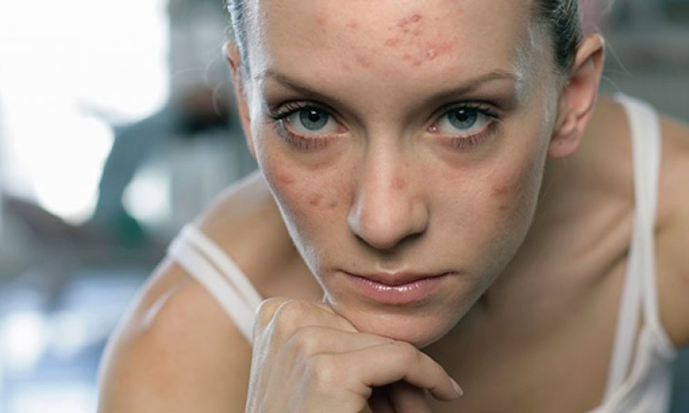Beauty Products for Adult Acne 3 Beauty Products that Will Help You Cure Adult Acne