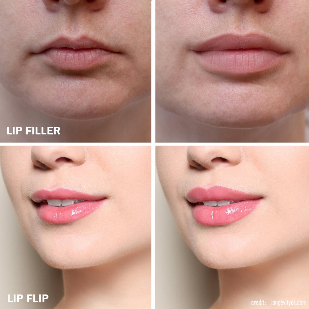 Lip-Flip and Lip-Fillers